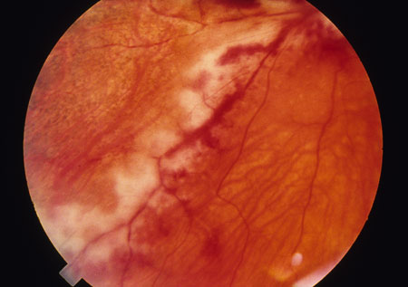 image of Cytomegalovirus retinitis