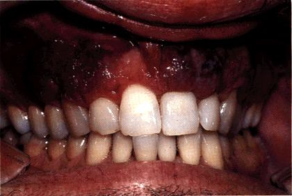 image of Kaposi sarcoma: occurring in the gingiva
