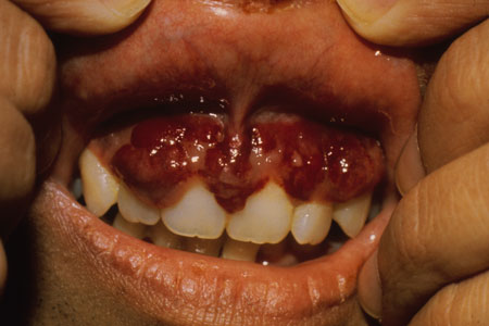 image of Kaposi sarcoma: gingival