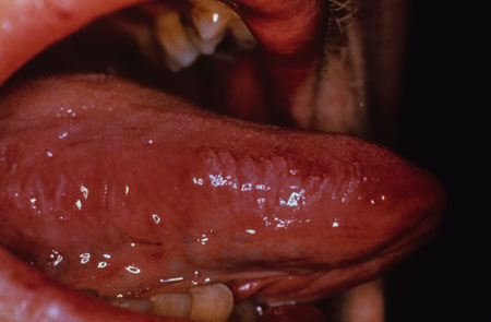 image of Oral hairy leukoplakia