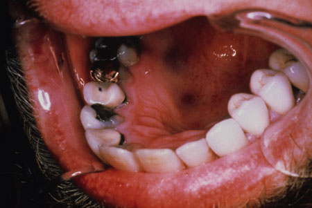 image of Kaposi sarcoma: hyperpigmented lesions of floor of mouth