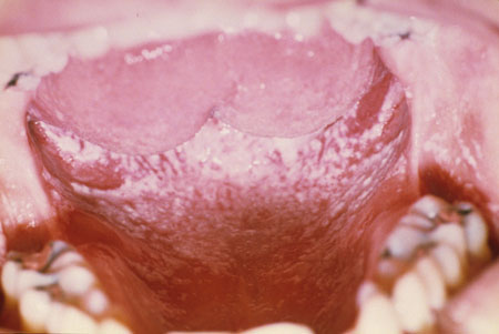 image of Candidiasis: pseudomembranous