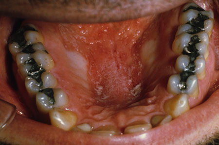 image of Candidiasis: erythematous