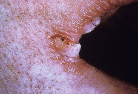 image of Angular cheilitis