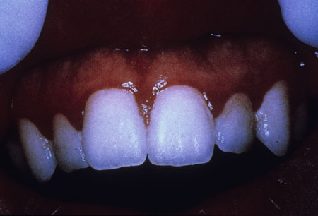 image of Gingival erythema: linear