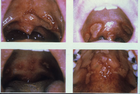 image of Aphthous ulcers