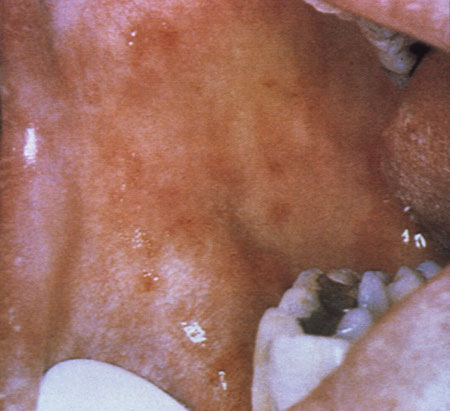 image of Thrush: erythematous