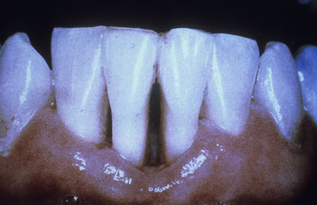 image of Periodontitis: ulcerative