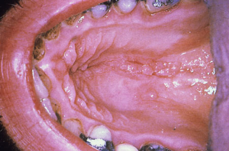 image of Warts: oral