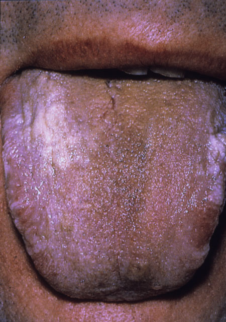 image of Coated tongue