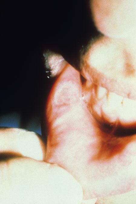 Hiv Aids Oral Manifestations Images Hiv Aids