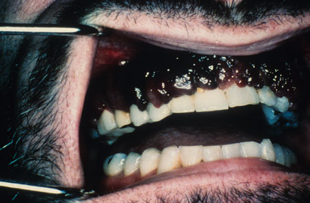image of Kaposi sarcoma: gingival lesions