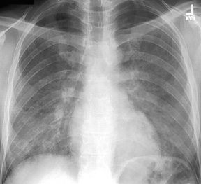 image of Pneumocystis jiroveci (formerly carinii) pneumonia: chest X ray with bilateral, diffuse granular opacities