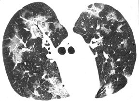 image of Pneumocystis jiroveci: HRCT scan in a patient with a normal chest X ray