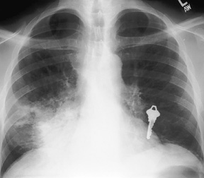 image of Tuberculosis: chest X ray with a focal opacity