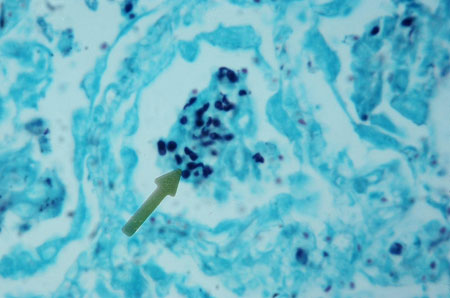 image of Pneumocystis jiroveci (formerly carinii) pneumonia