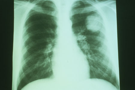 image of Non-Hodgkin lymphoma: chest X ray showing isolated pulmonary nodule in patient with AIDS