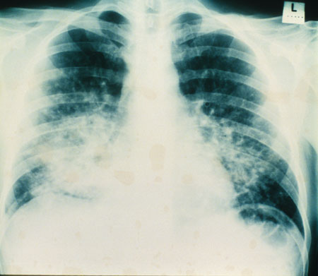 image of Kaposi sarcoma: chest X ray showing pulmonary involvement