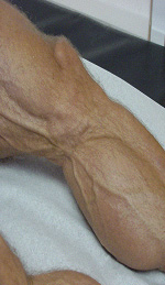 image of Lipoatrophy: fat depletion of leg