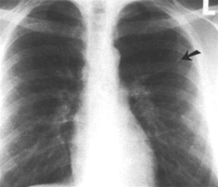 image of Non-Hodgkin lymphoma: initial chest radiograph
